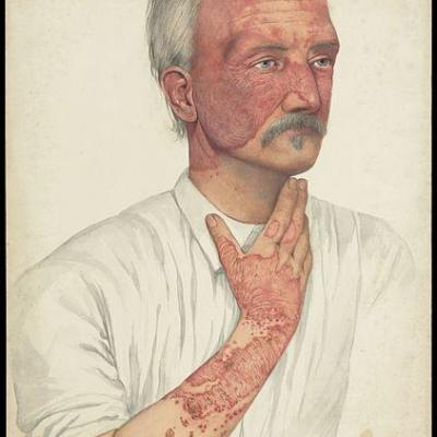 A man with disease designated as lupus erythematosus wellcome l0051332