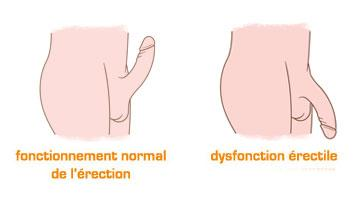 Dysfonction erectile remede naturel