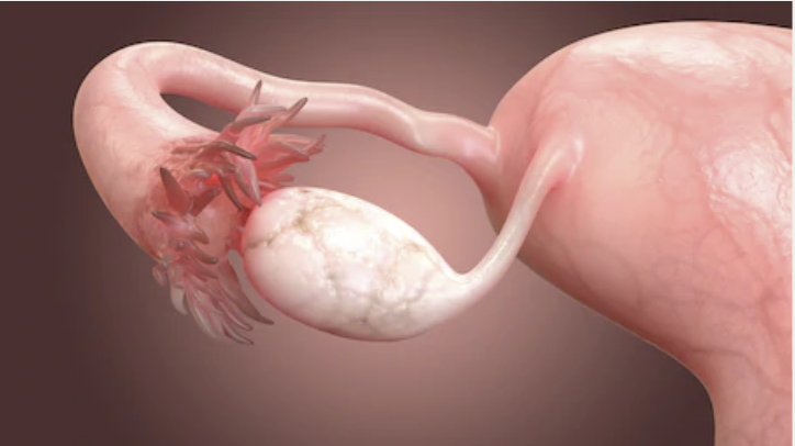 Fallopian tubes blocked hydrosalpinx female fertility