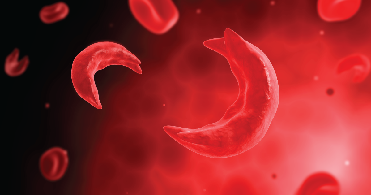 Sickle cell trait vs sickle cell disease 0