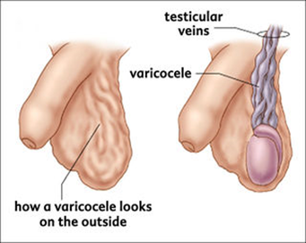 Varicocele treatment in hyderabad 01